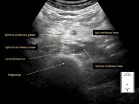 przestrzeń zaotrzewnowa i duże naczynia jamy brzusznej - Portal wymiany wiedzy o ultrasonografii - Eduson