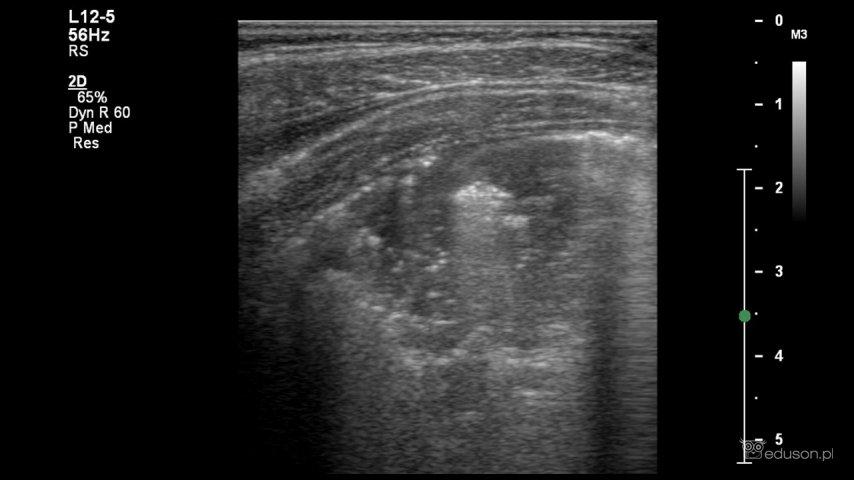 Liczne pęcherzyki powietrza widoczne wświetle oskrzeli (bogaty bronchogram powietrzny).