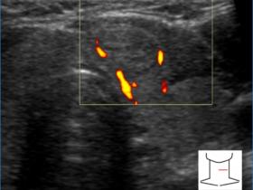 Zmiany ogniskowe tarczycy - zasady opisu - Portal wymiany wiedzy o ultrasonografii - Eduson