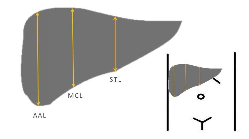 Wymiary podłużne wątroby niezbędne doobliczenia wskaźnika wielkości wątroby (ILS)