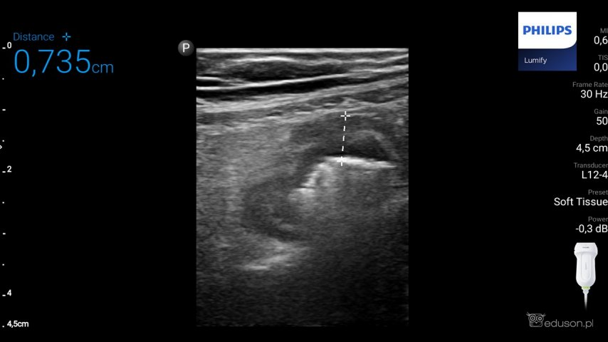 Pomiar grubości ściany końcowego odcinka jelita krętego upacjenta zchorobą Leśniowskiego-Crohna wtrakcie badania ultrasonograficznego.