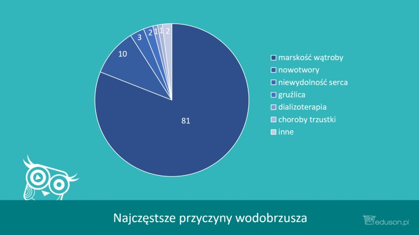Najczęstsze przyczyny wodobrzusza. Infografika eduson.pl