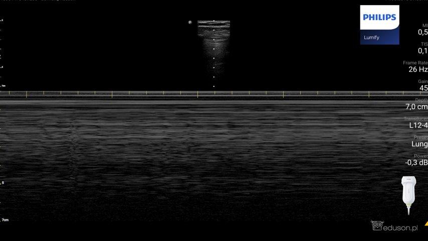 Zdjęcie 2. Głowica liniowa PHILIPS LUMIFY. Włączona opcja M-mode.