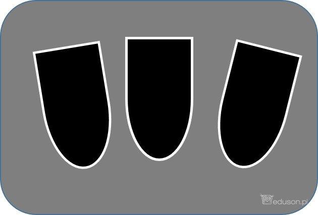 Obrazy ultrasonograficzne: hiperechogeniczne obwódki wokół piramid nerkowych