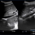 Indeks IVC/Ao - ocena stopnia nawodnienia - Portal wymiany wiedzy o ultrasonografii - Eduson