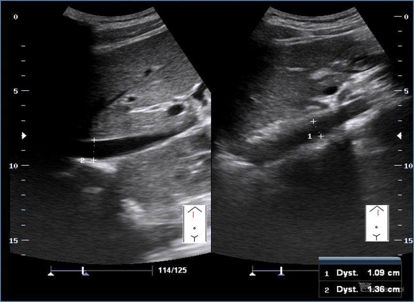 Indeks IVC/Ao wusg - ocena stopnia nawodnienia. Obraz ultrasonograficzny - żyła główna dolna / aorta
