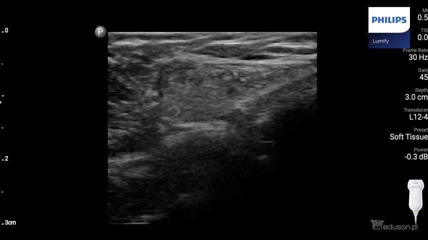 Głowica liniowa przyłożona poprzecznie wokolicy wyczuwalnego guzka tkanek miękkich prawej wargi sromowej u5-letniej dziewczynki. Widoczna jest miernie echogeniczna zmiana owalnego kształtu (nakolejnym zdjęciu lokalizację zmiany zaznaczono żółtym kółkiem). Głowica linowa. Philips Lumify.