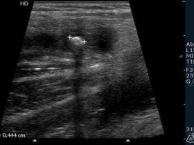 Zapalenie wyrostka robaczkowego - galeria obrazów ultrasonograficznych - część 1. - Portal wymiany wiedzy o ultrasonografii - Eduson