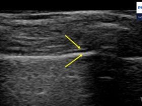 USG płuc – jak poprawnie ustawić aparat usg? - Portal wymiany wiedzy o ultrasonografii - Eduson