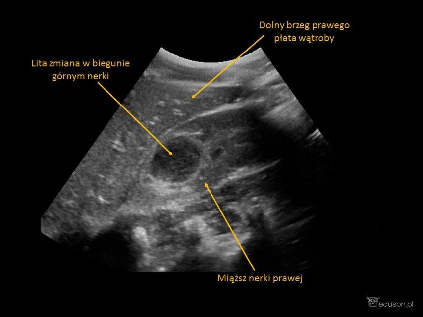 6-letni chłopiec z bólem w prawym dole biodrowym - Portal wymiany wiedzy o ultrasonografii - Eduson