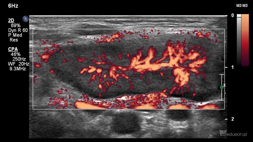 Prawidłowy, odwnękowy typ unaczynienia wopcji PD. Obraz ultrasonograficzny