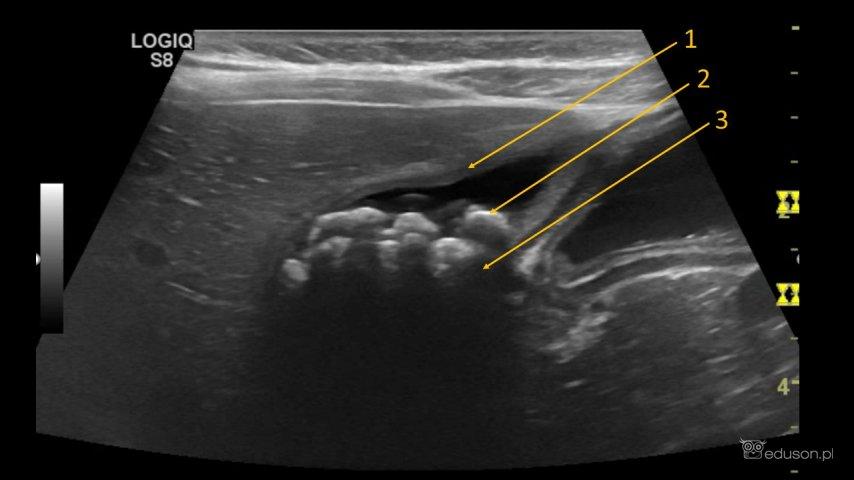 Nastolatka z bólem brzucha i nudnościami - Portal wymiany wiedzy o ultrasonografii - Eduson