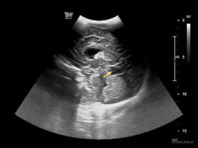 Dlaczego warto wykonać usg mózgowia u niemowlęcia z powiększoną sylwetką serca? - Portal wymiany wiedzy o ultrasonografii - Eduson