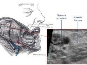 Dziewczynka z guzem policzka - Portal wymiany wiedzy o ultrasonografii - Eduson