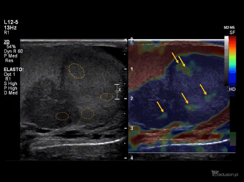 Chłopiec z powiększonym lewym jądrem - Portal wymiany wiedzy o ultrasonografii - Eduson