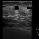 BIRADS-usg - co to oznacza? - Portal wymiany wiedzy o ultrasonografii - Eduson