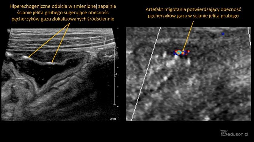 Gaz wścianie jelita u12-letniego chłopca zmartwiczym zapaleniem jelit wprzebiegu terapii ostrej białaczki limfoblastycznej. Postronie lewej obraz ściany jelita grubego uzyskany zapomocą głowicy liniowej. Postronie prawej artefakt migotania wywołany przy wykorzystaniu głowicy konweksowej (powiększenie).