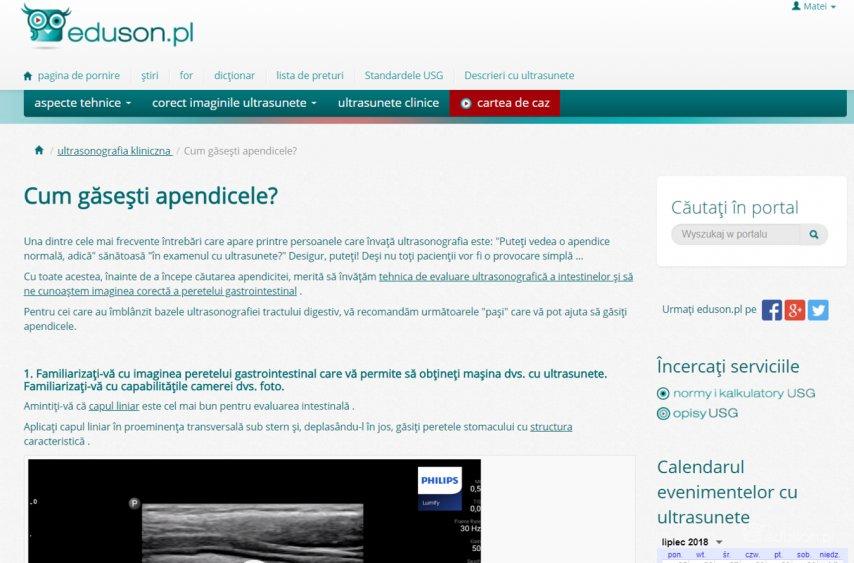 eduson.pl - un portál pentru schimbul de cunostiente despre ultrasonografie