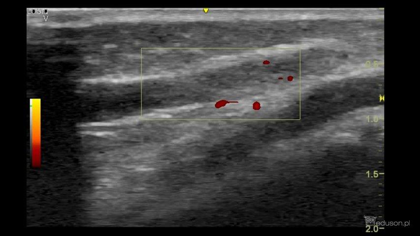 Zakrzepowe zapalenie żył powierzchownych u dziecka - Portal wymiany wiedzy o ultrasonografii - Eduson