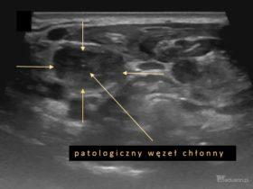 Badania usg w gabinecie lekarza rodzinnego - pierwszy krok szybkiej diagnostyki onkologicznej. - Portal wymiany wiedzy o ultrasonografii - Eduson