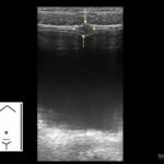 Moczownik - Portal wymiany wiedzy o ultrasonografii - Eduson