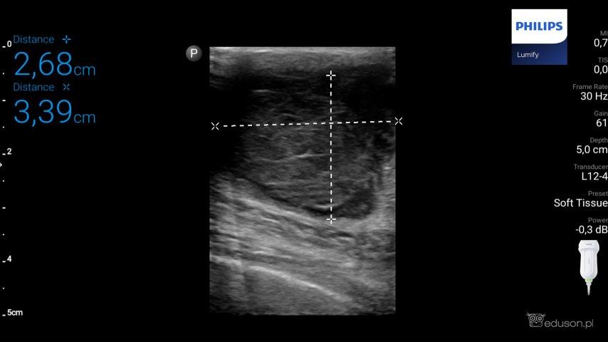 42-letni mężczyzna z guzem prawego sutka - Portal wymiany wiedzy o ultrasonografii - Eduson