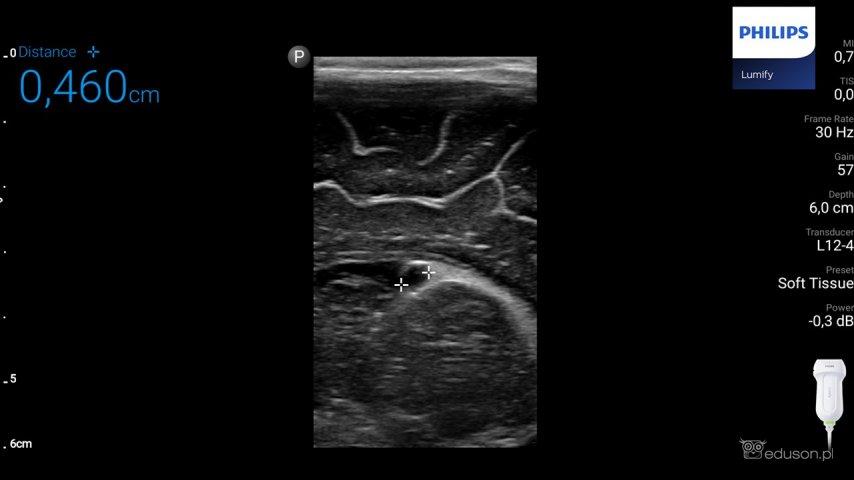 Torbiel podwyściółkowa czy torbiel w splocie naczyniówkowym w badaniu usg mózgowia u noworodków i niemowląt? A może to jedno i to samo? - Portal wymiany wiedzy o ultrasonografii - Eduson
