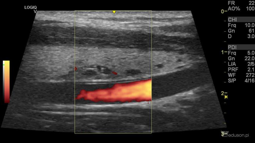 Bo moja matka ma Hashimoto... - Portal wymiany wiedzy o ultrasonografii - Eduson