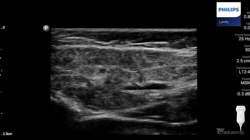 Ślinianka: Ślinianka przyuszna pacjenta zpierwotnym zespołem Sjogrena. Widoczne obszary niskiej echogeniczności przedzielone hiperechogenicznymi pasmami. Całość przypomina obraz plastra miodu. Badanie wykonano głowicą liniową Philips Lumify.
