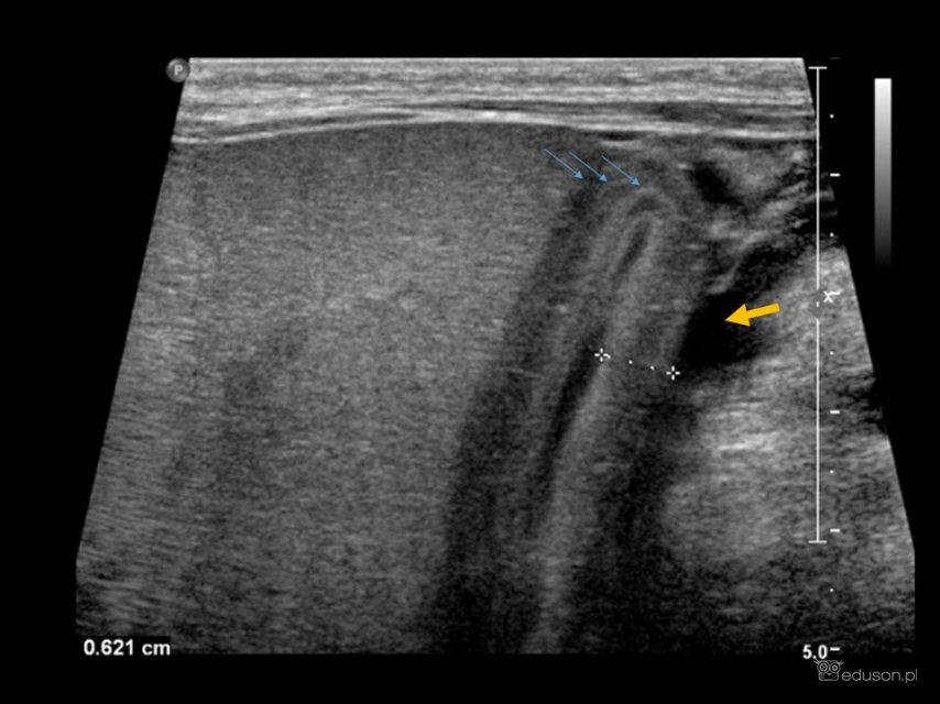 Bezkamicze zapalenie pęcherzyka żółciowego. Ocena obkurczonego pęcherzyka zapomocą głowicy liniowej. Widoczne charakterystyczne prążkowanie pogrubiałej ściany (niebieskie strzałki) iwolny płyn wokół pęcherzyka żółciowego (żółta strzałka).