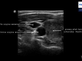 Pomiar grubości kompleksu błony środkowej i wewnętrznej tętnicy szyjnej (intima-media complex thickness) - Portal wymiany wiedzy o ultrasonografii - Eduson