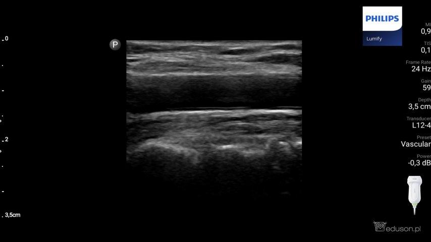 Zdjęcie 1. Głowica liniowa PHILIPS LUMIFY. Preset vascular. Tętnica szyjna wspólna, przekrój podłużny.