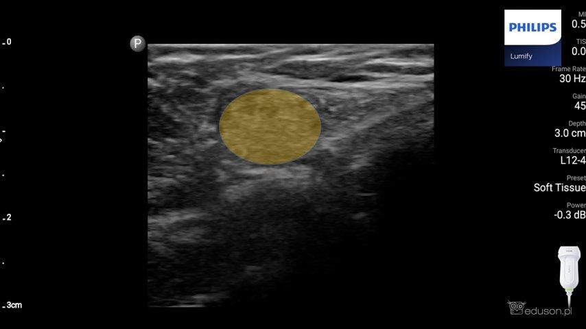 Dziewczynka z wyczuwalnym guzkiem okolicy podbrzusza i nawracającymi bólami brzucha. - Portal wymiany wiedzy o ultrasonografii - Eduson
