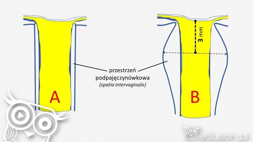 A - nerw wzrokowy wraz zosłonką upacjenta zprawidłowym ciśnieniem śródczaszkowym. Szerokość osłonki nerwu wzrokowego jest stała nacałym przebiegu pozagałkowym. B - nerw wzrokowy zposzerzoną osłonką wwyniku wzrostu ciśnienia śródczaszkowego. Proces ten jest najbardziej nasilony około 3 mm zagałką oczną.