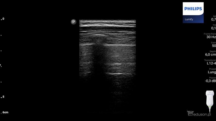 Prawidłowy obraz płuc uzyskany zapomocą głowicy liniowej. Preset płucny. Philips Lumify.