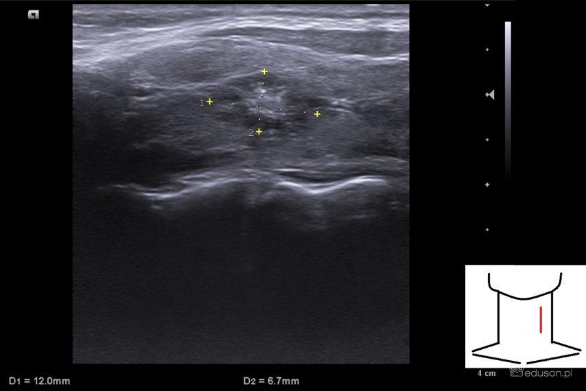 Kontrolne usg zmiany ogniskowej tarczycy, w której w BAC rozpoznano zmianę łagodną (II kategoria wg klasyfikacji Bethesda) - Portal wymiany wiedzy o ultrasonografii - Eduson