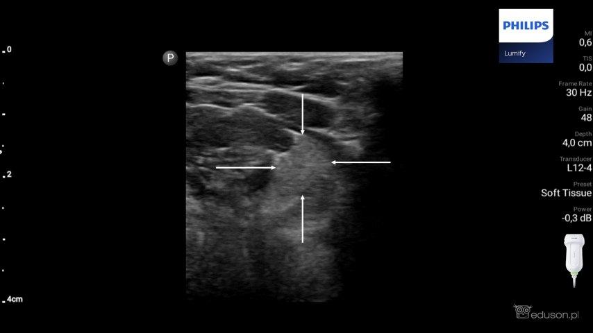 Zdjęcie 1. Głowica liniowa PHILIPS LUMIFY. Głowica przyłożona jest wokolicy podbródkowej wprzekroju poprzecznym. Strzałkami zaznaczono granice lewej ślinianki podjęzykowej.