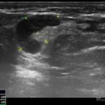 32 letnia kobieta z guzkiem prawego dołu pachowego - Portal wymiany wiedzy o ultrasonografii - Eduson