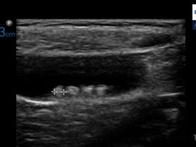 Kamica pęcherzyka żółciowego u dzieci - Portal wymiany wiedzy o ultrasonografii - Eduson