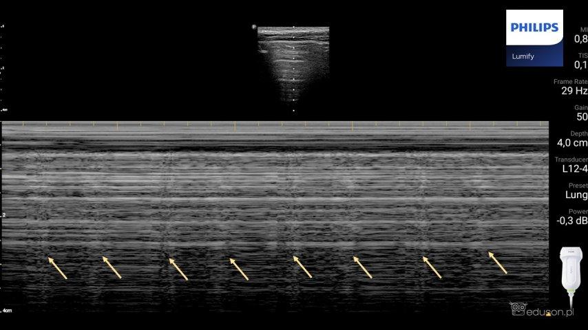 Lung pulse (strzałki) widoczny wopcji M-mode podczas obrazowania płuc udziecka. Głowica liniowa. Philips Lumify.