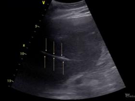 Zagadka wątrobowa - Portal wymiany wiedzy o ultrasonografii - Eduson