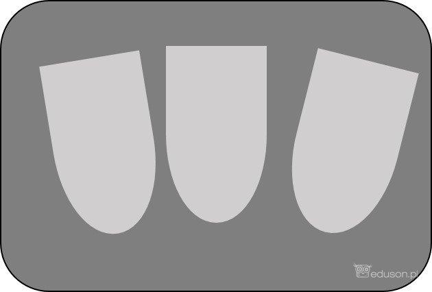 Obrazy ultrasonograficzne: podwyższenie echogeniczności piramid