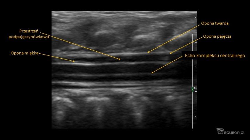kanał kręgowy - Portal wymiany wiedzy o ultrasonografii - Eduson