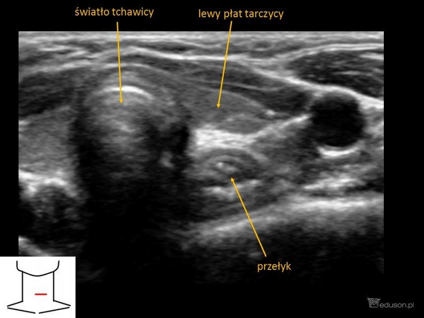 jelita - Portal wymiany wiedzy o ultrasonografii - Eduson