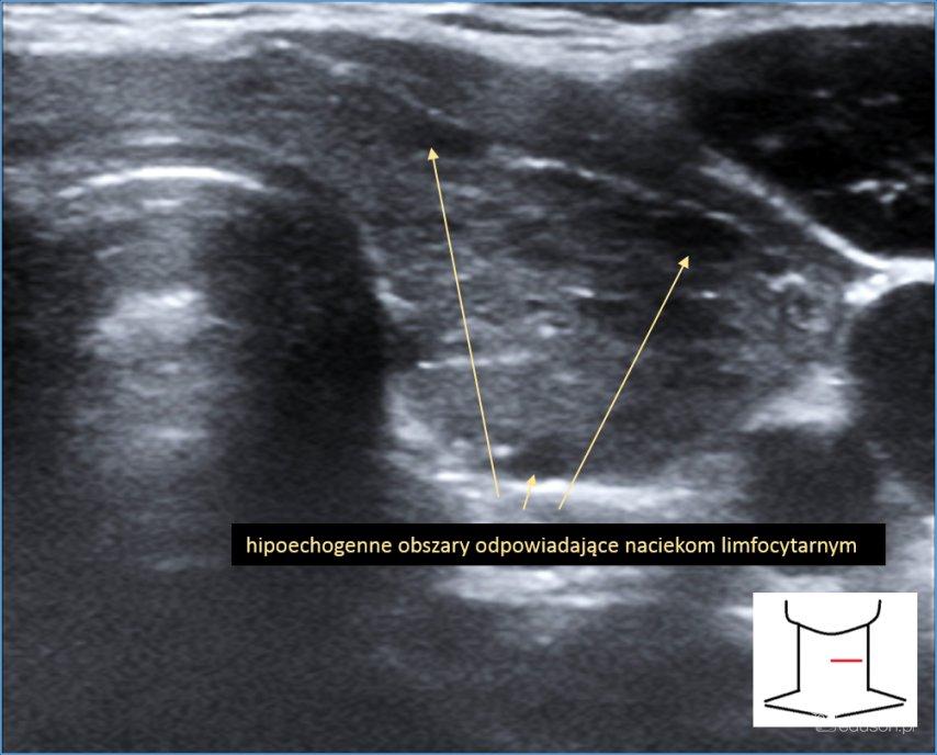 autoimmunologiczne zapalenie tarczycy, powiększenie gruczołu tarczowego