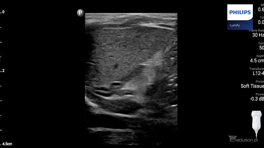 Obraz prawidłowego nadnercza noworodka. Widoczny jest trójkątny kształt nadnercza zhipoechogeniczną korą ihiperechogenicznym rdzeniem nadnercza. Głowica liniowa. Philips Lumify.