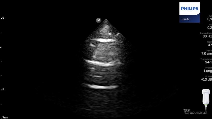 Płuco widoczne wgłowicy sektorowej zpłytkim obrazowaniem. Poniżej linii opłucnej widoczne są jedynie dwa artefakty linii A. Philips Lumify.