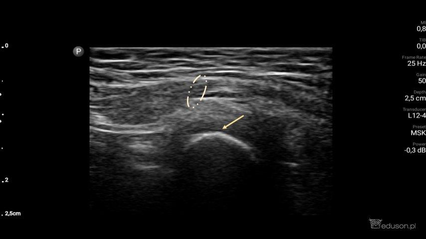 Prawy guzek łonowy kości miednicznej (strzałka) ipierścienia pachwinowego powierzchownego (przerywana linia). Głowica liniowa. Philips Lumify.