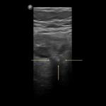 Zapalenie uchyłków jelita grubego - Portal wymiany wiedzy o ultrasonografii - Eduson