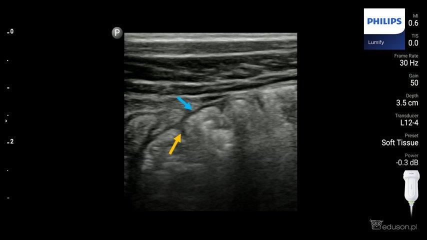Obraz ultrasonograficzny prawidłowej ściany jelita grubego.
